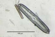 Fossile Diatomee aus Ugchelen/Holland